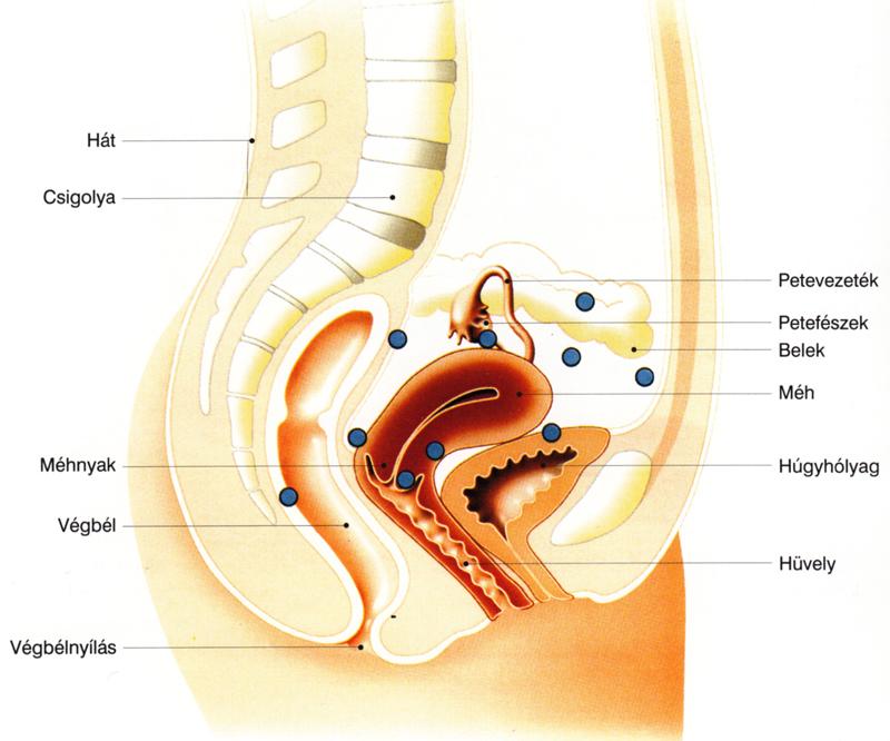 mi az endometriosis visszeres)