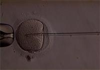 ICSI (Intracytoplasmic Sperm Injection), Beinjektálás folyamata képekben
